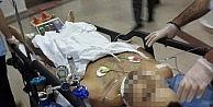 Askerden İzne Gelen Genç Bıçaklı Saldırıda Ağır Yaralandı